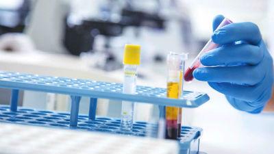 Nivel CHCM analisis de sangre