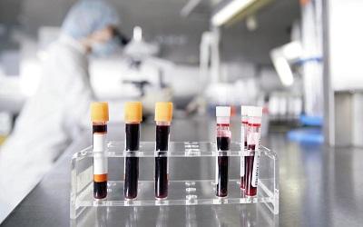 Analisis de Leucocitos