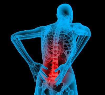 Principales causas dolor de espalda