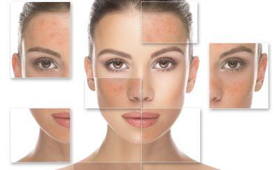 7 Recomendaciones para tratar el acne