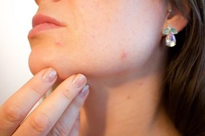 Cuidados para eliminar el acne