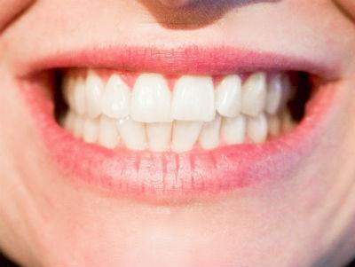 Consejos para tener una buena salud dental