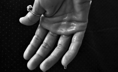 Cómo paliar los efectos de la hipersudoración