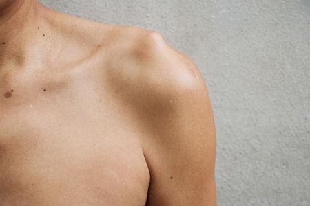 Las manchas en la piel y en distintas partes del cuerpo