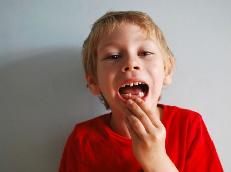 Bancos de dientes de leche