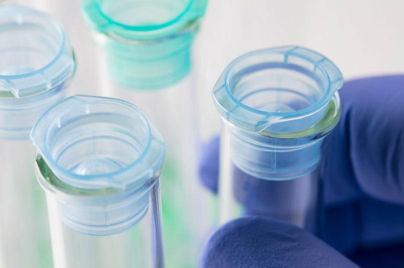 Tests geneticos para las dietas