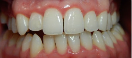 Tratamiento de la gingivitis