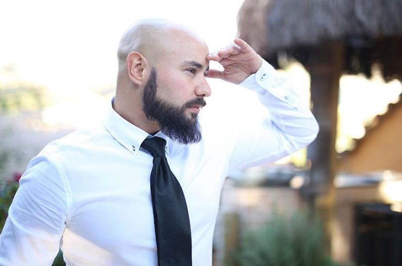 Consejos para evitar la caída del cabello en los hombres