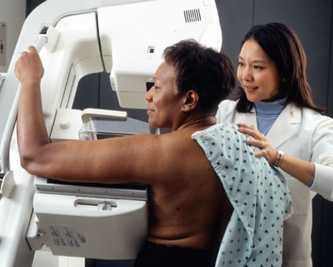 radiografia del tejido mamario