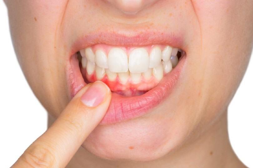 peligroso sangrado encías o gingivitis