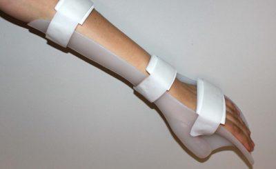 uso ortesis tratamiento prevención lesiones